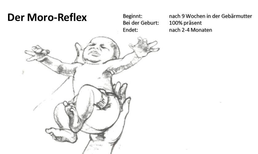 Der Moro-Reflex - Details