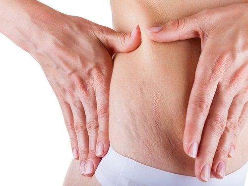 Massagen mit Cremes reich an Vitamin E helfen, die Streifen vorzubeugen und zu verringern.