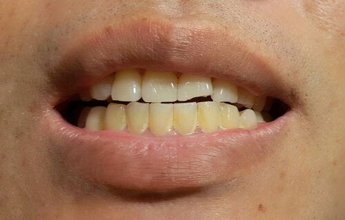 Flecken auf Zähnen - Was hat es damit auf sich?   Ich bin Mutter