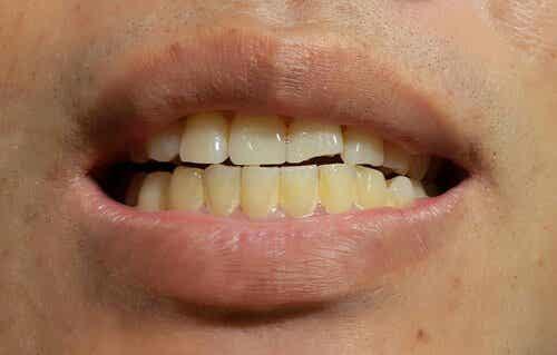 Flecken auf Zähnen