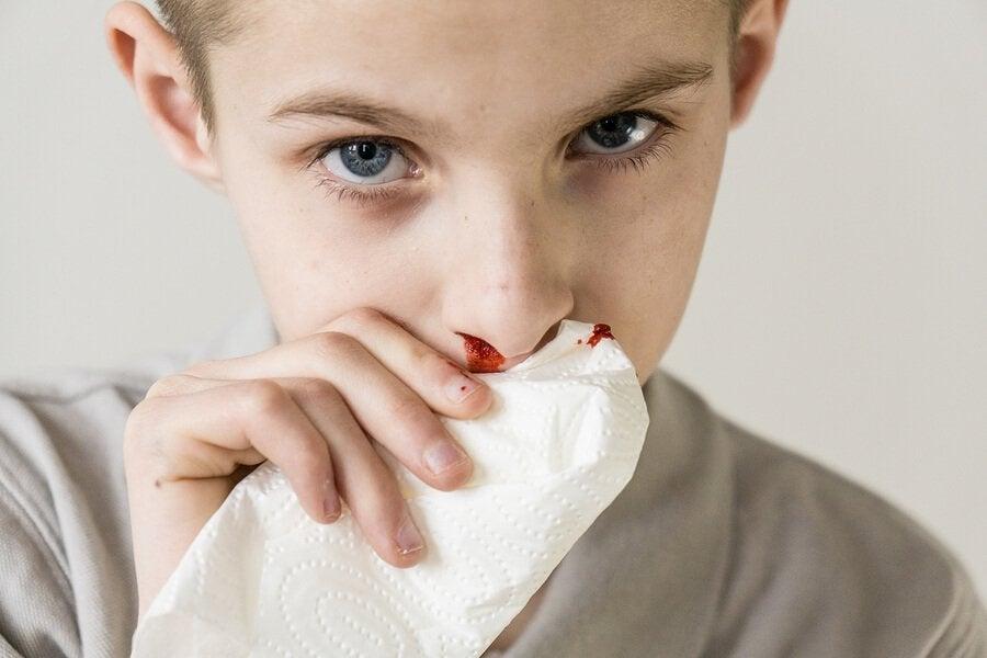 Nasenbluten bei Kindern: Ursachen und Behandlung