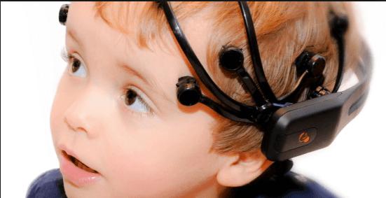 Elektroenzephalografie ist eine Behandlungsart von Absenzanfällen.
