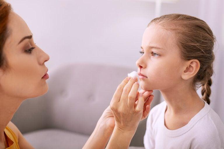 Nasenbluten bei Kindern richtig behandeln und vermeiden