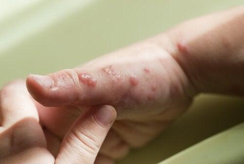 Wie kann Herpes geheilt werden?