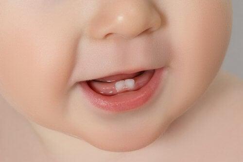 Symptome und Beschwerden, wenn Babys zahnen