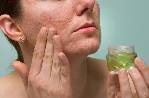 Narben mit Aloe Vera Gel behandeln