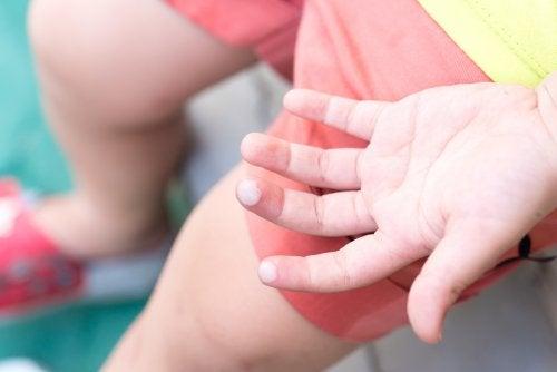 Blasen bei Kindern können verschiedene Ursachen haben
