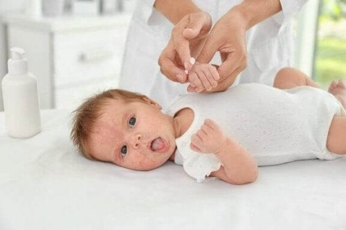 Neurodermitis bei Kindern kann durch bestimmte Stoffe ausgeslöst werden