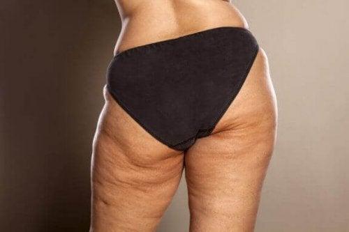 Weißt du, wie man Cellulite bekämpfen kann?