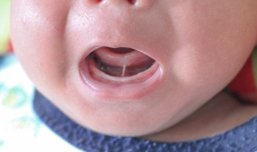 Was ist Ankyloglossia oder Zungenverwachsung?