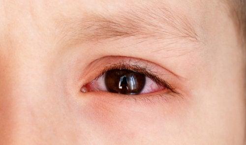 Welche Ursachen hat eine subkonjunktivale Blutung bei Kindern?