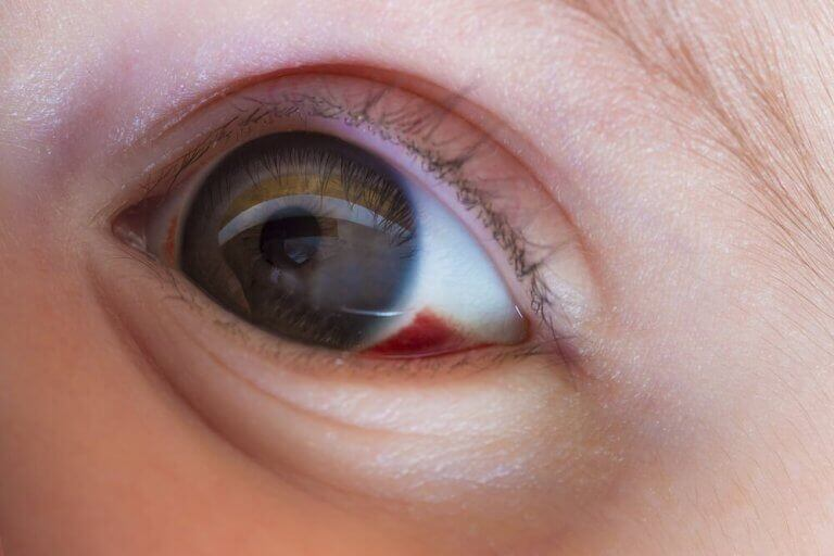 subkonjunktivale Blutung - Kinderauge