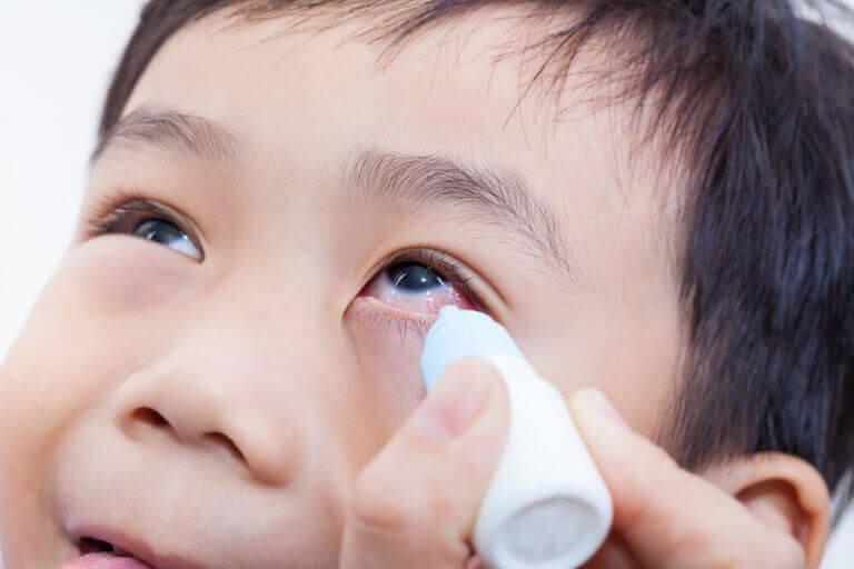 subkonjunktivale Blutung - Junge bekommt Augentropfen
